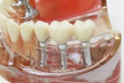 歯科技工士常駐