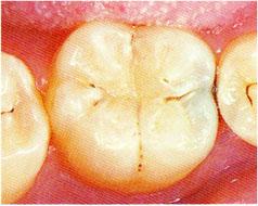 初期虫歯のチェック