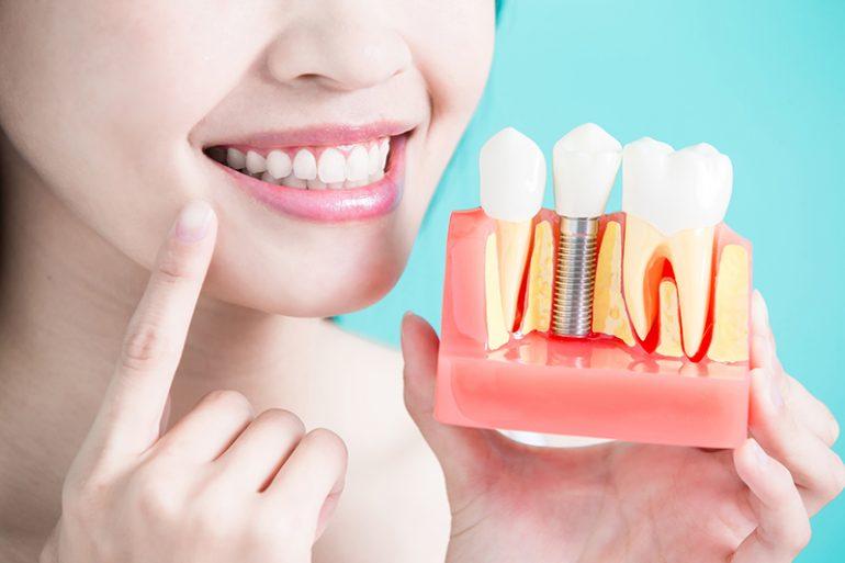 美しく長時間しっかり噛める歯を手に入れる