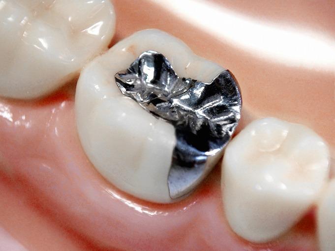 金属アレルギーと銀歯